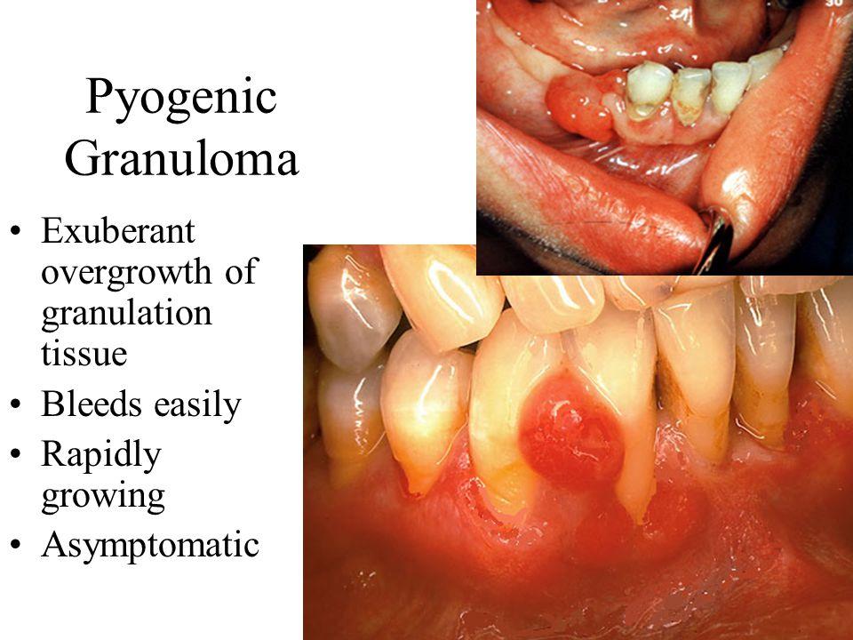 Pyogenic Granuloma Exuberant overgrowth of granulation tissue