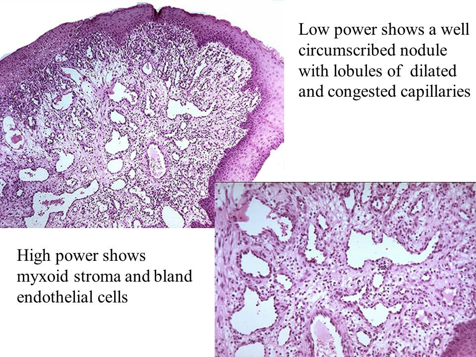 Low power shows a well circumscribed nodule with lobules of dilated and congested capillaries