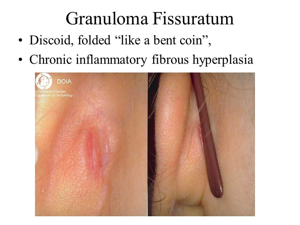 Granuloma Fissuratum Discoid, folded like a bent coin ,