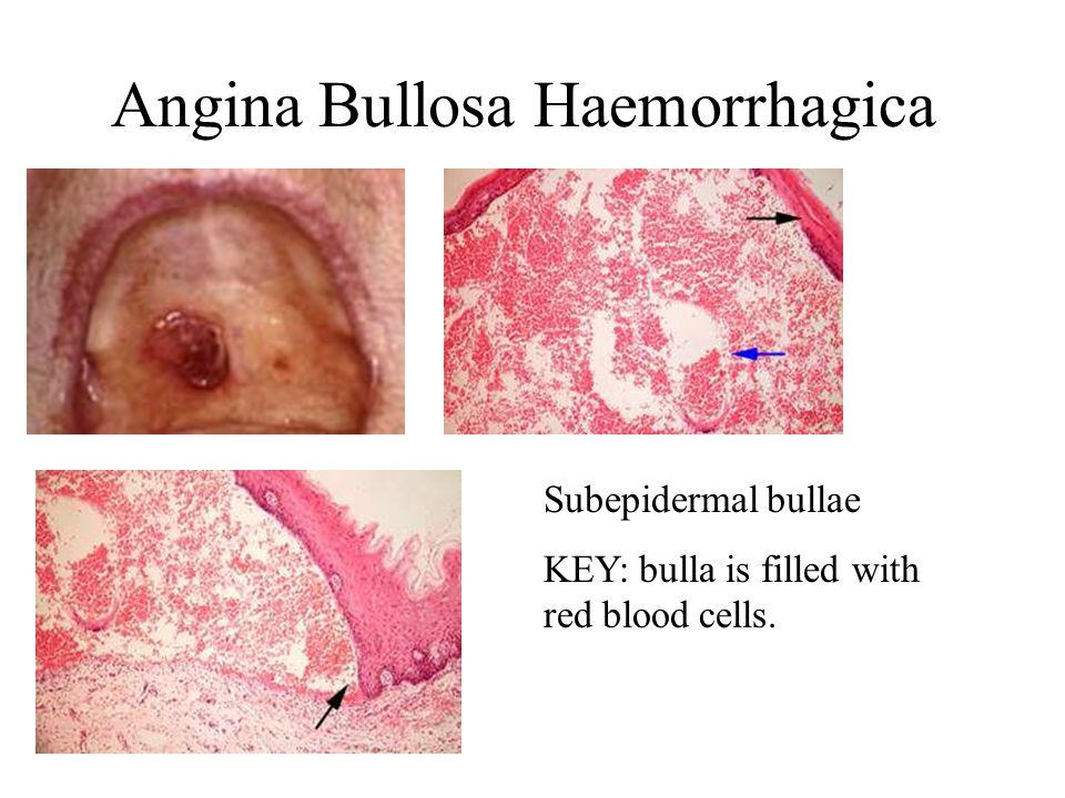 Angina Bullosa Haemorrhagica