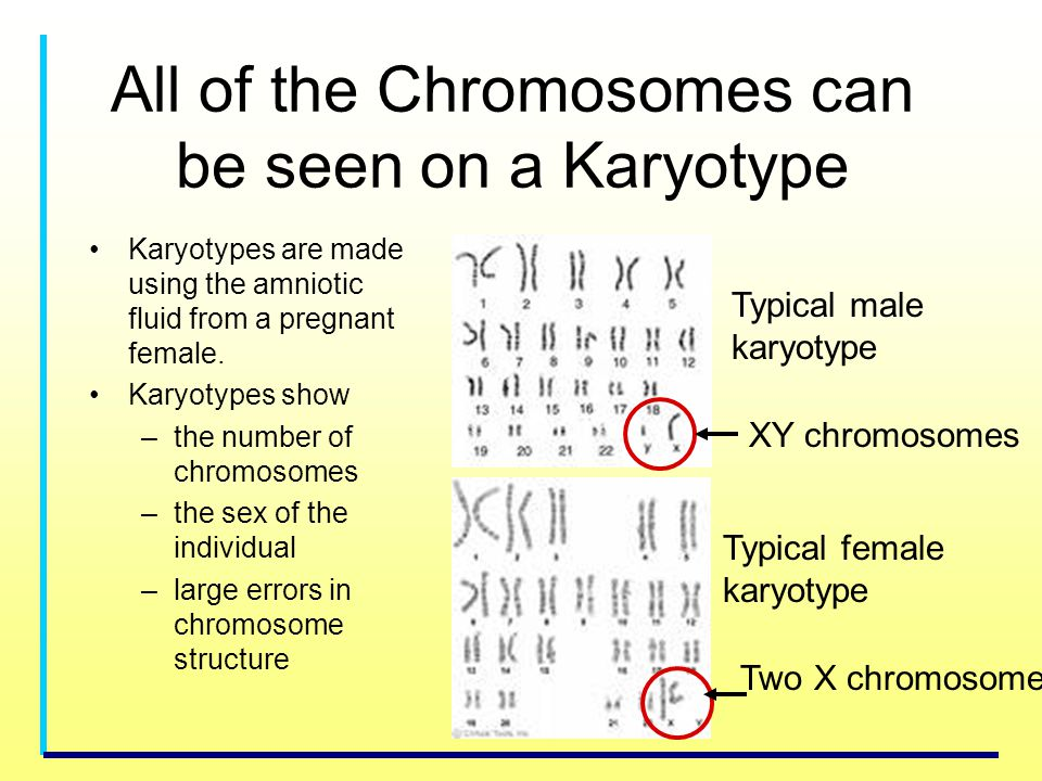 All of the Chromosomes can be seen on a Karyotype