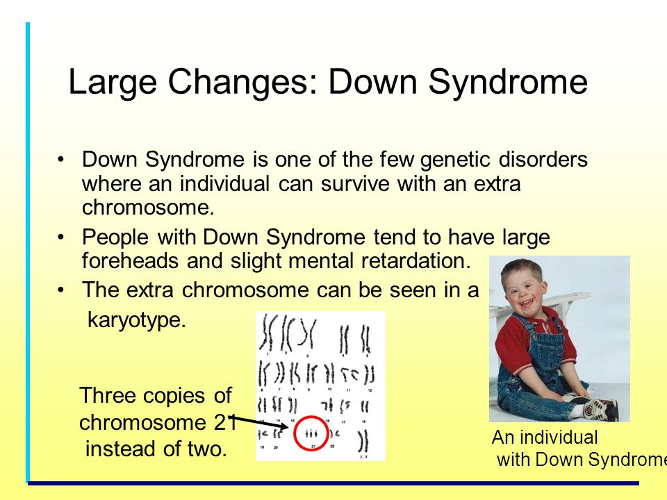 Large Changes: Down Syndrome