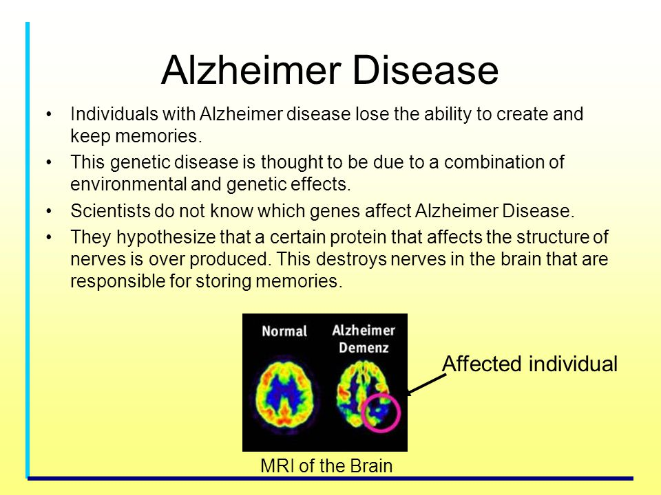 Alzheimer Disease Affected individual
