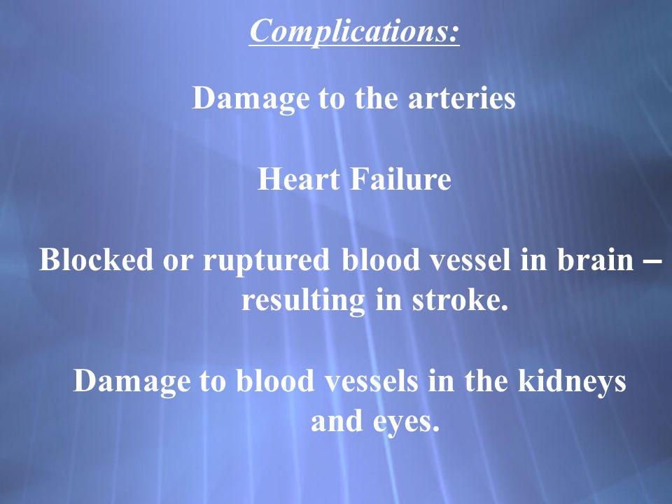 Blocked or ruptured blood vessel in brain – resulting in stroke.