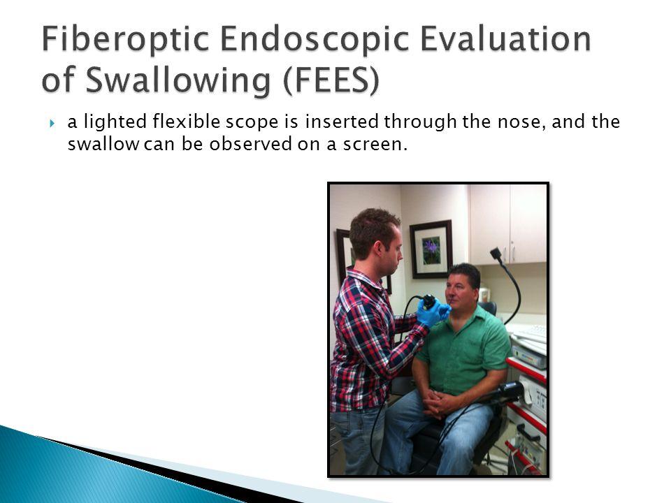 Fiberoptic Endoscopic Evaluation of Swallowing (FEES)