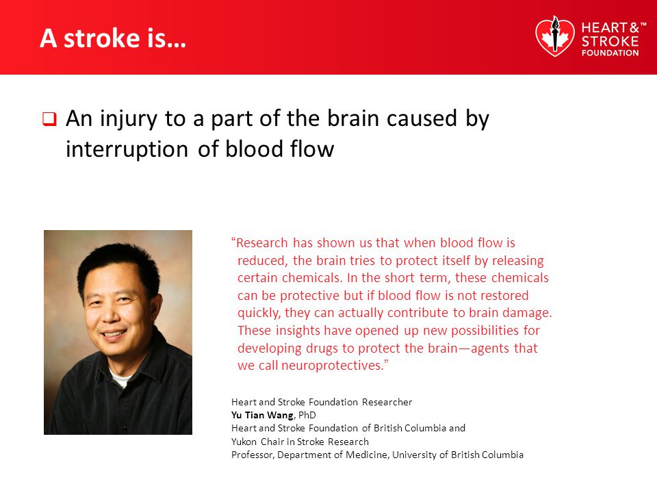 A stroke is… An injury to a part of the brain caused by interruption of blood flow.