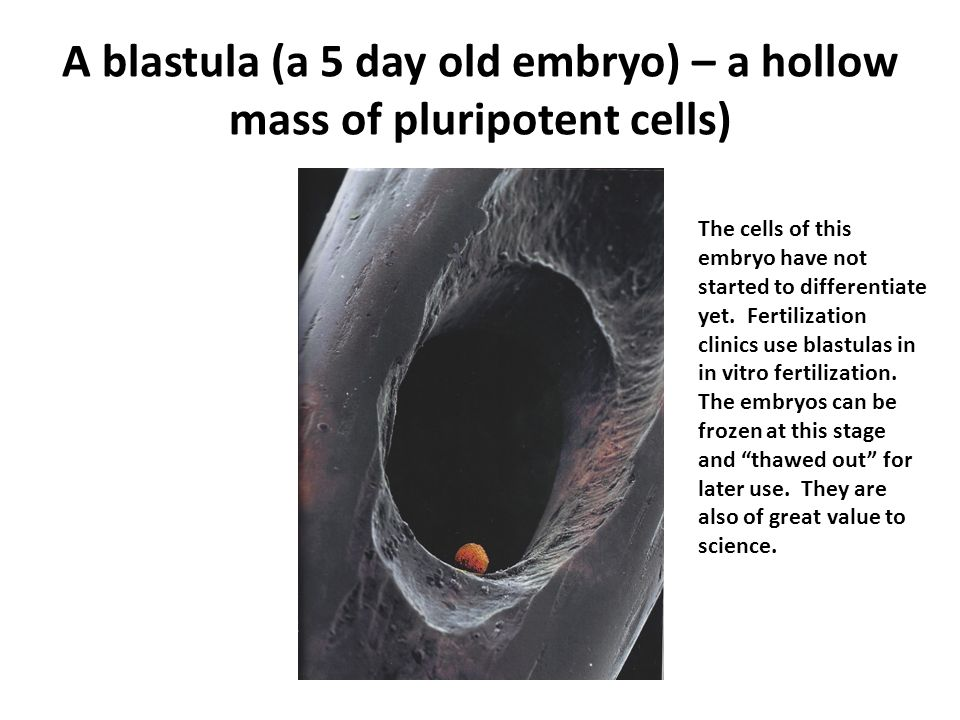 A blastula (a 5 day old embryo) – a hollow mass of pluripotent cells)