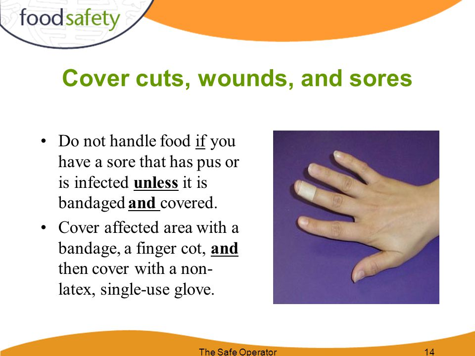Cover cuts, wounds, and sores