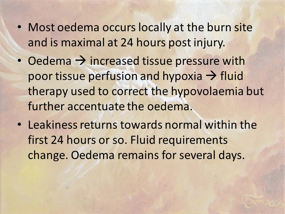 Most oedema occurs locally at the burn site and is maximal at 24 hours post injury.