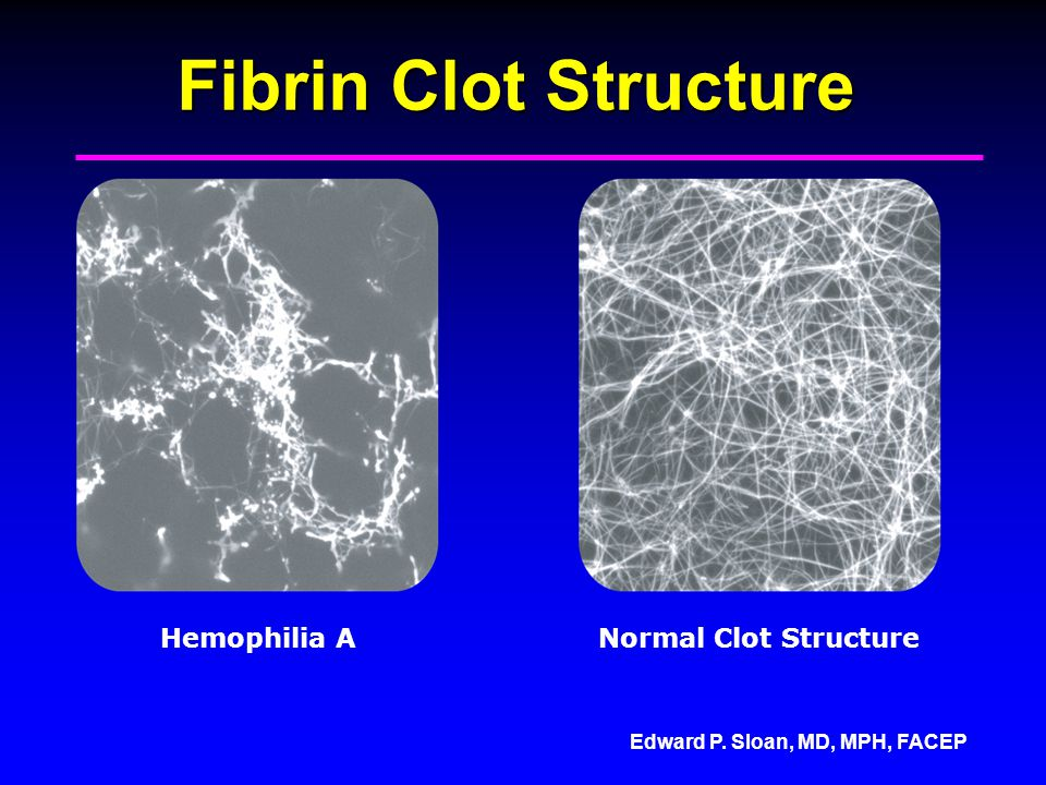 Fibrin Clot Structure Hemophilia A Normal Clot Structure