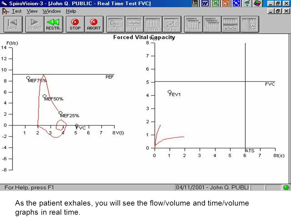 As the patient exhales, you will see the flow/volume and time/volume graphs in real time.