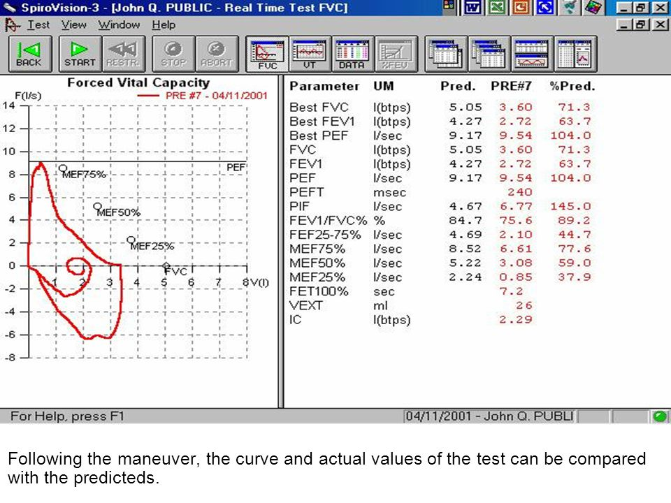 Following the maneuver, the curve and actual values of the test can be compared with the predicteds.