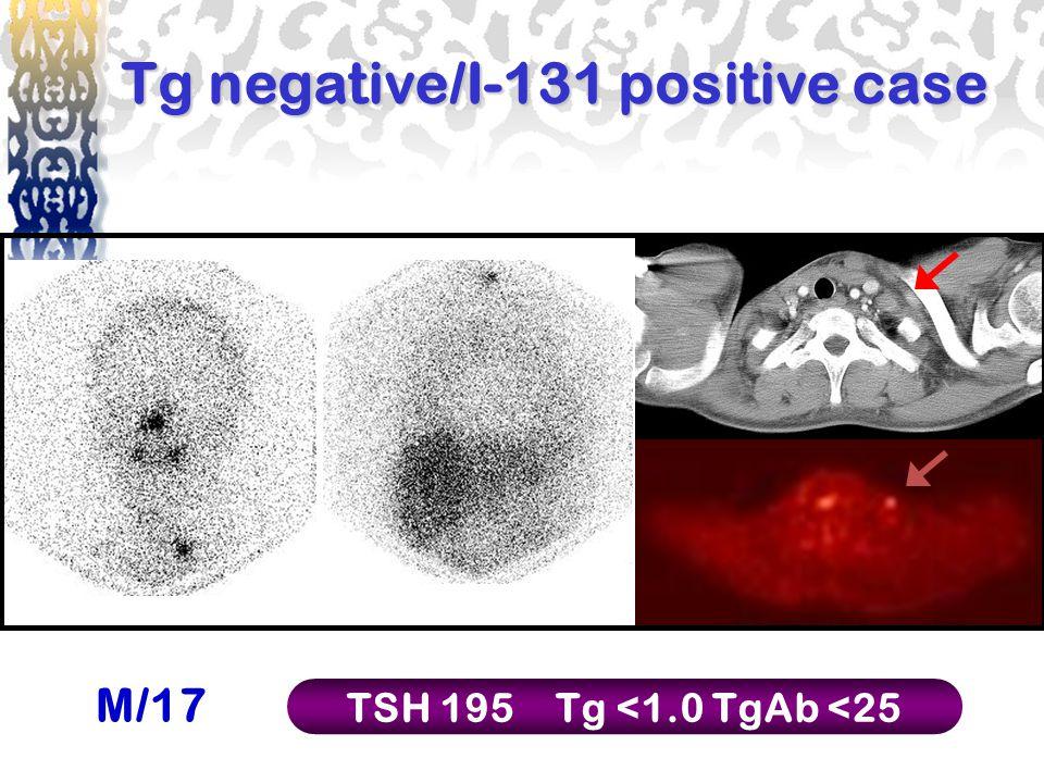 Tg negative/I-131 positive case