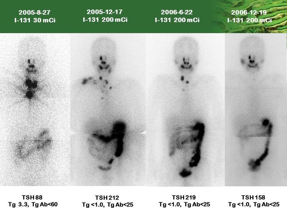 2005-8-27 I-131 30 mCi. 2005-12-17. I-131 200 mCi. 2006-6-22. I-131 200 mCi. 2006-12-19. I-131 200 mCi.