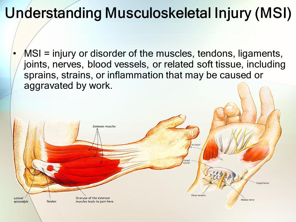 Understanding Musculoskeletal Injury (MSI)