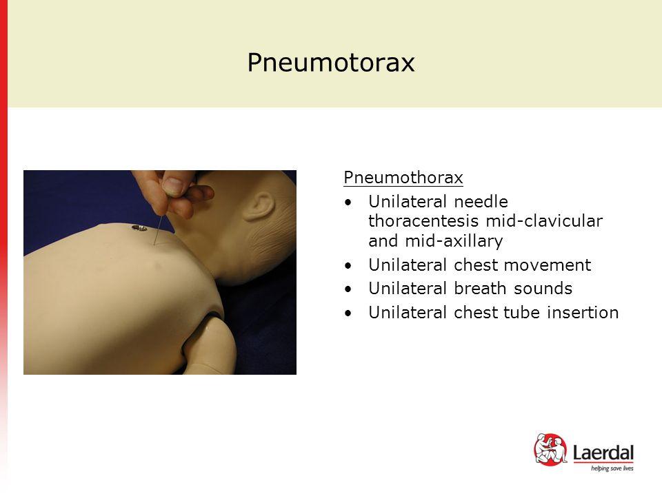 Pneumotorax Pneumothorax