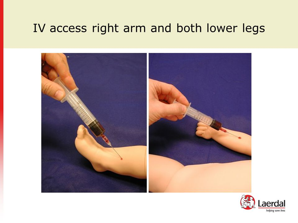 IV access right arm and both lower legs