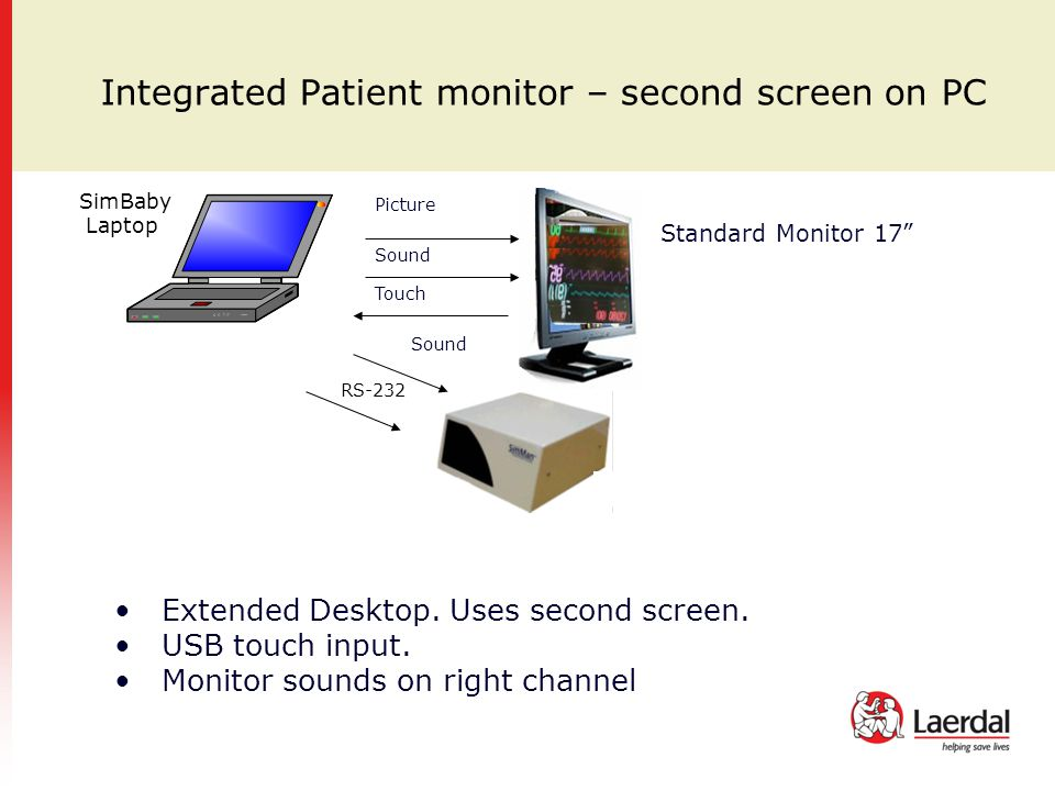 Integrated Patient monitor – second screen on PC