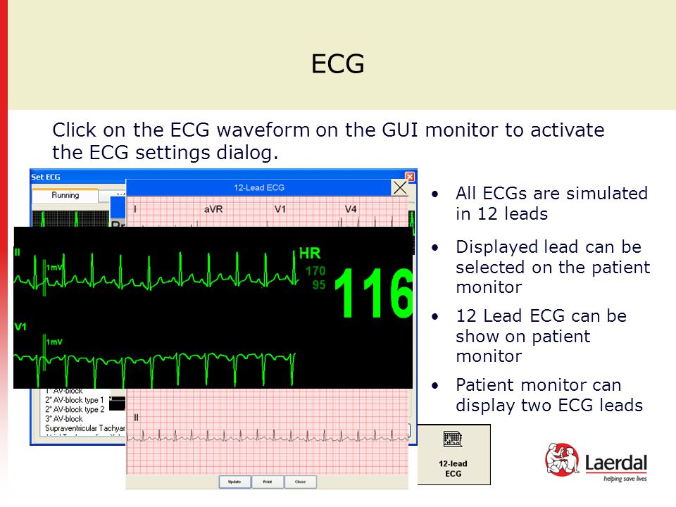 ECG Click on the ECG waveform on the GUI monitor to activate the ECG settings dialog. All ECGs are simulated in 12 leads.