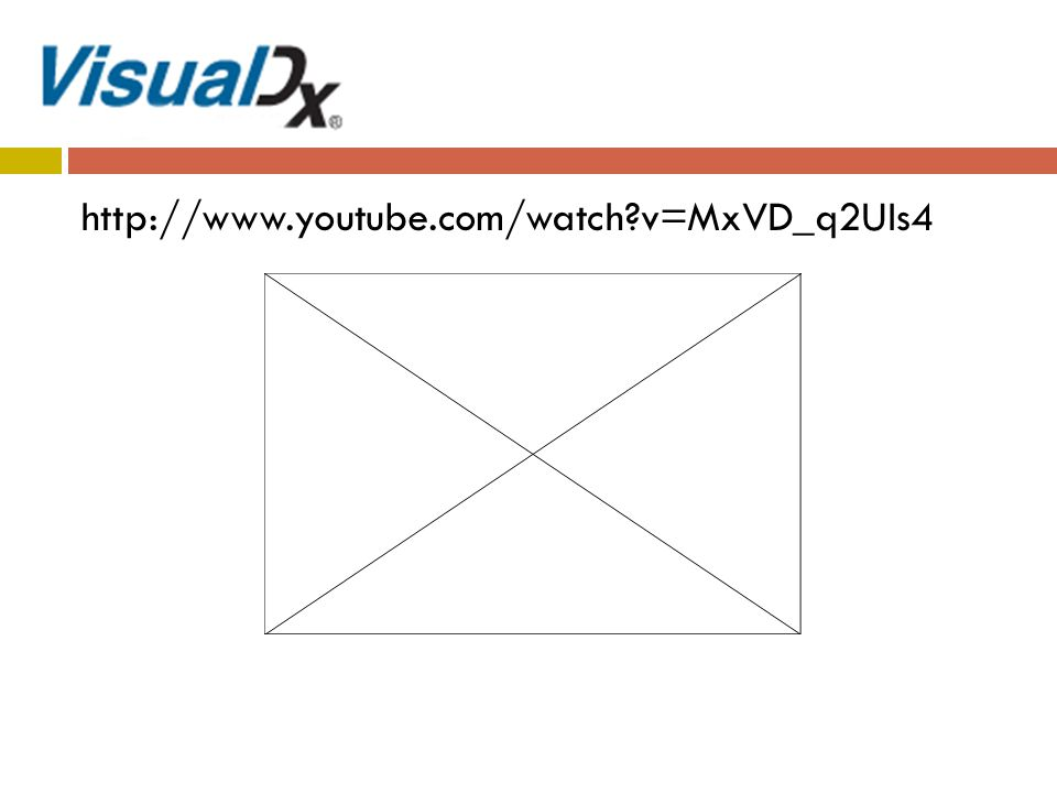 http://www.youtube.com/watch v=MxVD_q2UIs4