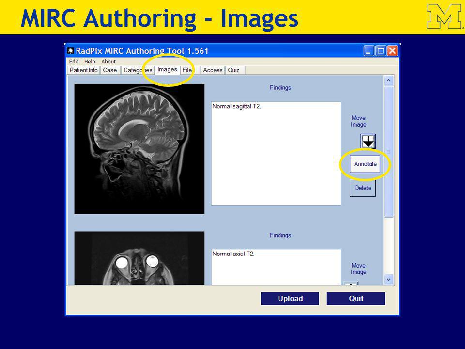 MIRC Authoring - Images
