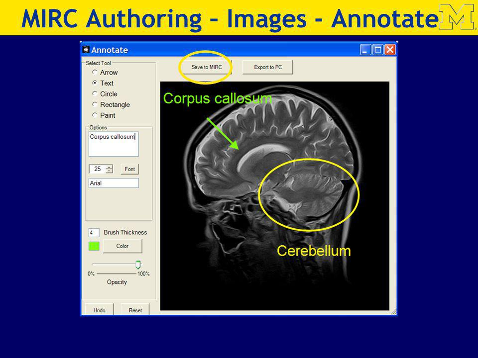 MIRC Authoring – Images - Annotate