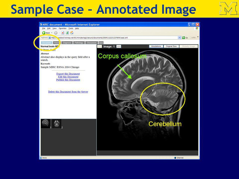 Sample Case – Annotated Image