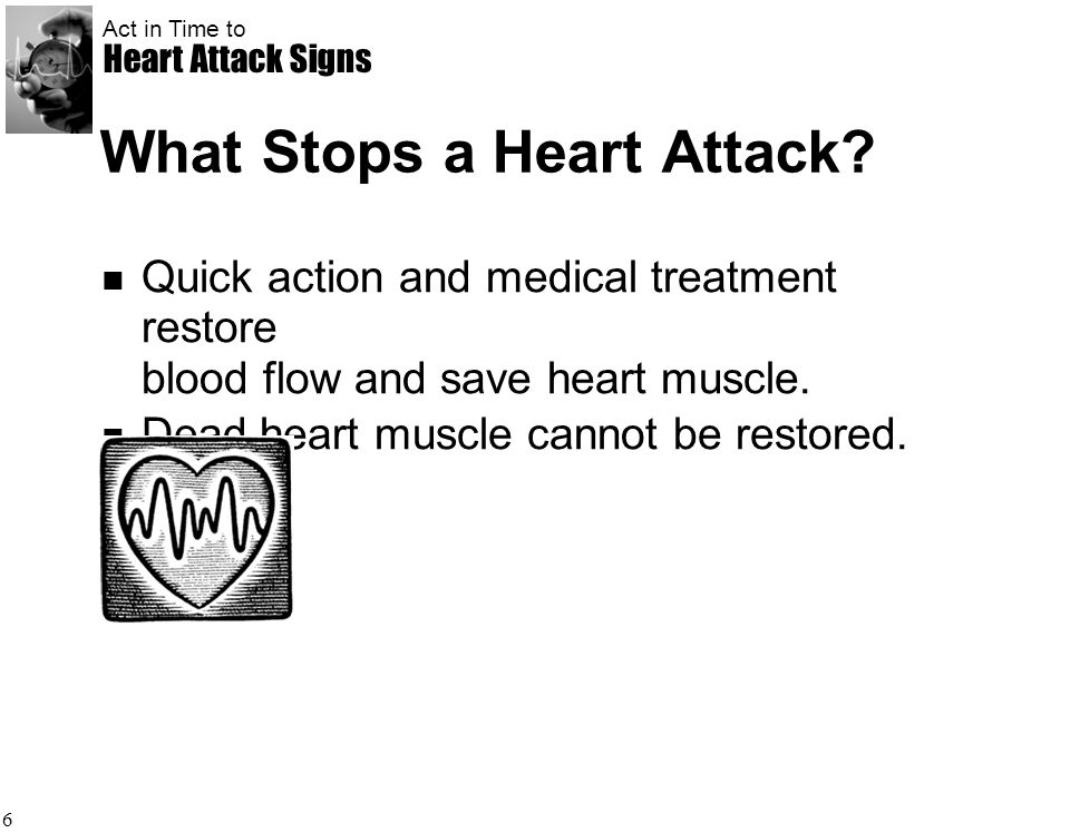 What Stops a Heart Attack