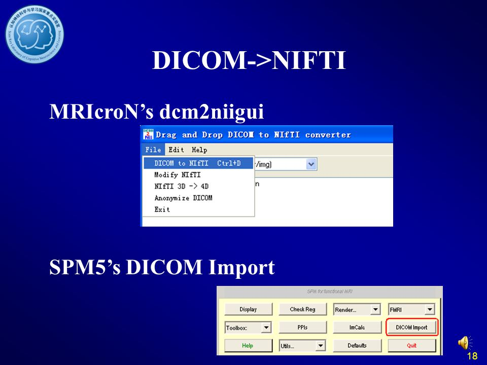 DICOM->NIFTI MRIcroN's dcm2niigui SPM5's DICOM Import 18