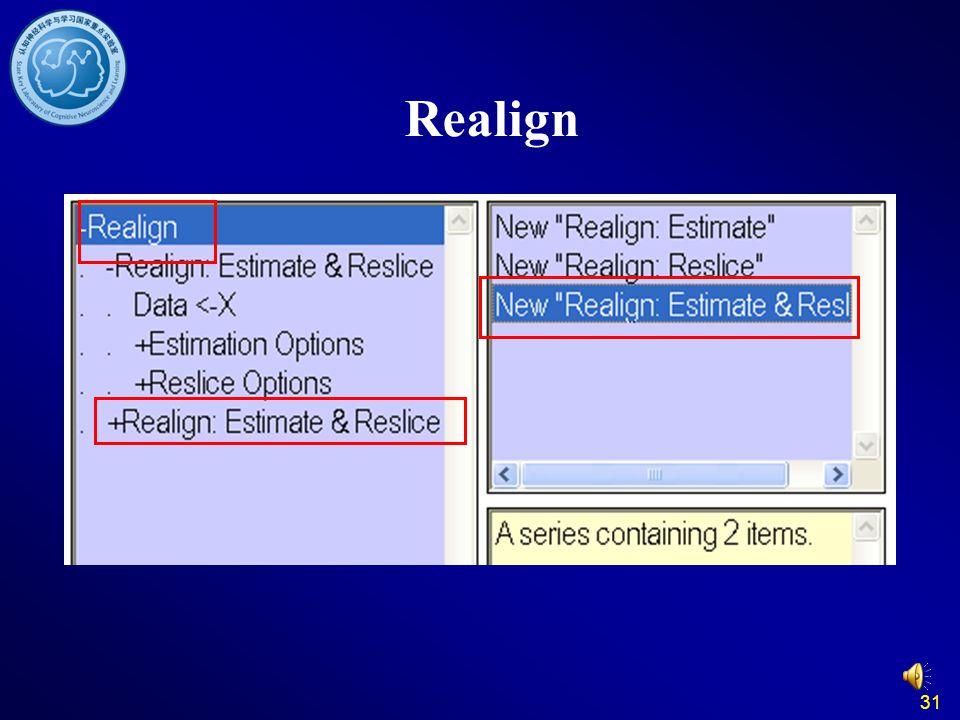 Realign 31