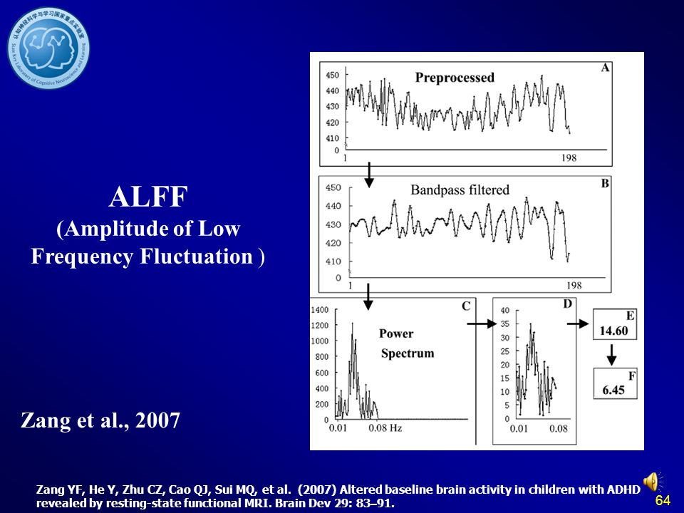 ALFF (Amplitude of Low Frequency Fluctuation )