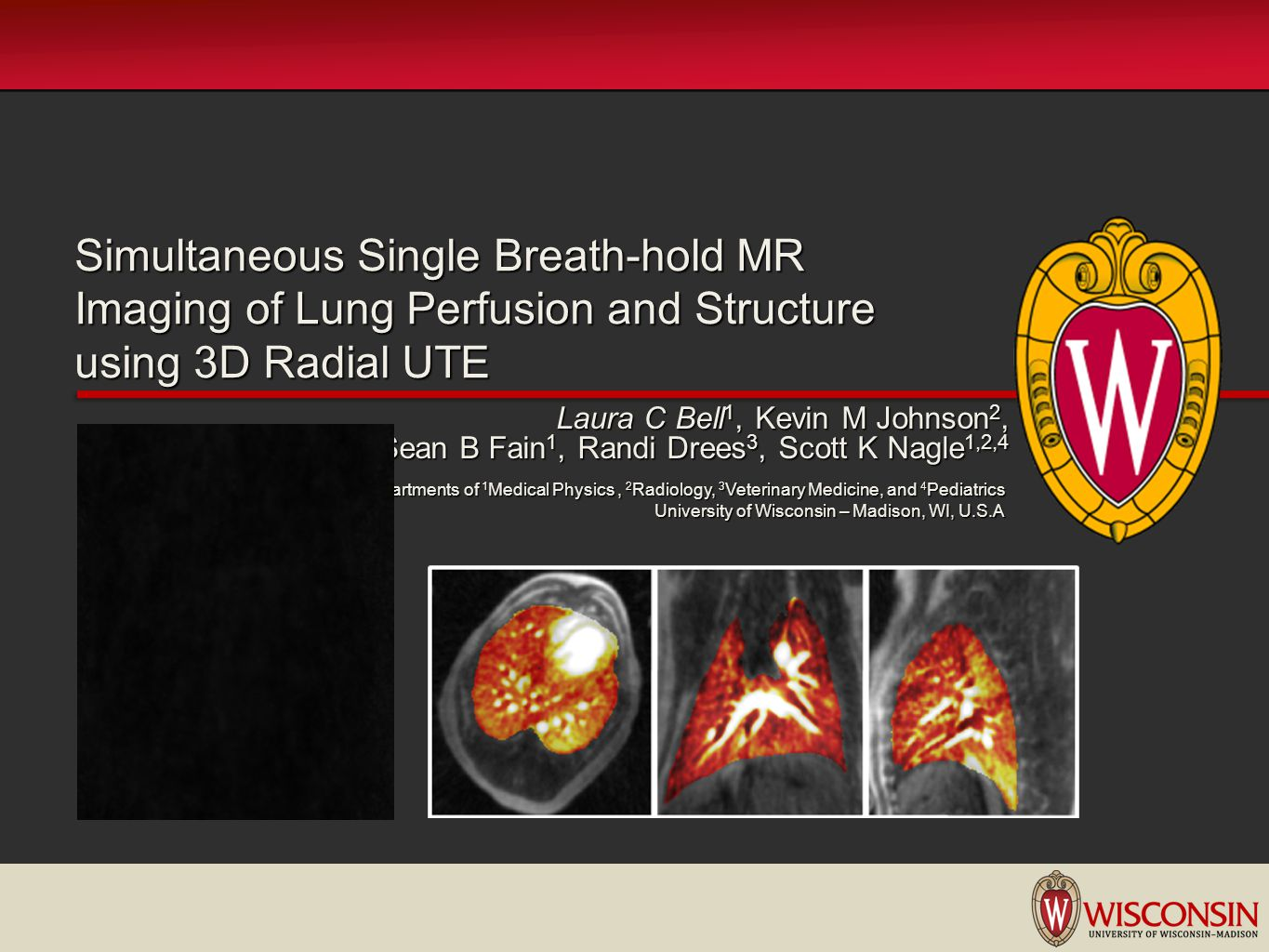 Simultaneous Single Breath-hold MR Imaging of Lung Perfusion and Structure using 3D Radial UTE
