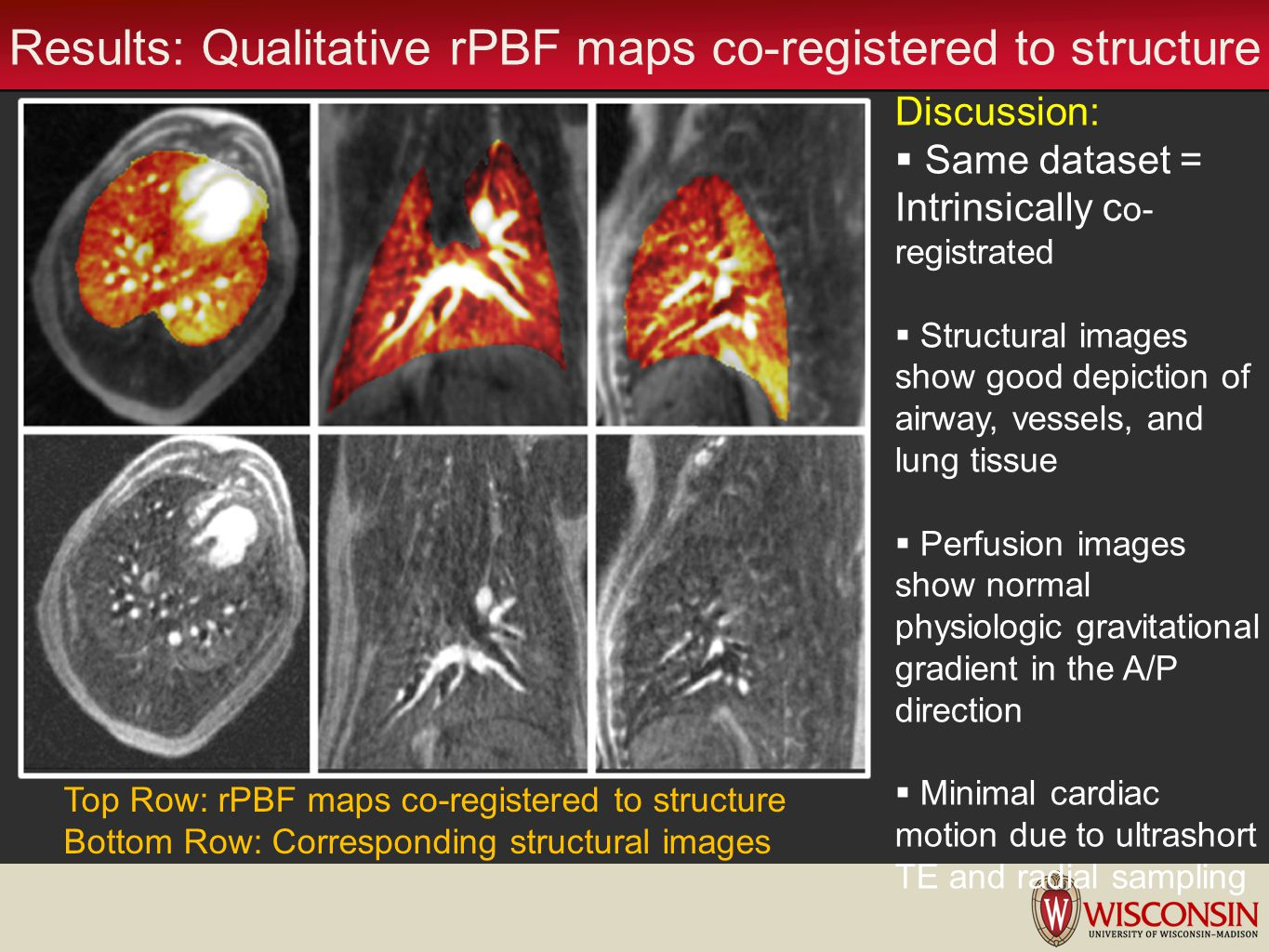 Results: Qualitative rPBF maps co-registered to structure
