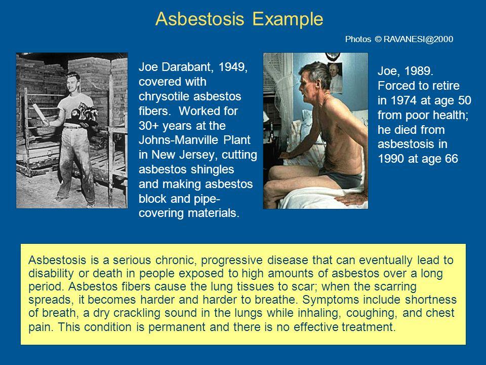 Asbestosis Example Photos © RAVANESI@2000.