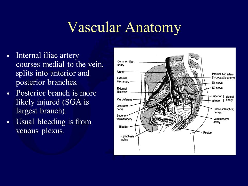Vascular Anatomy Internal iliac artery courses medial to the vein, splits into anterior and posterior branches.
