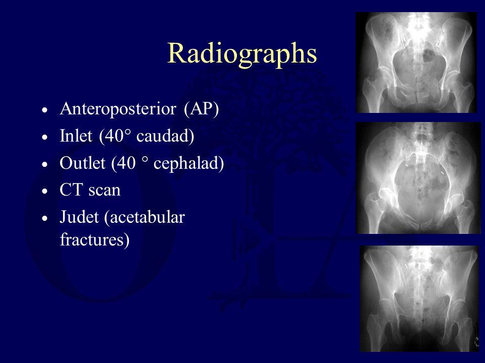 Radiographs Anteroposterior (AP) Inlet (40° caudad)