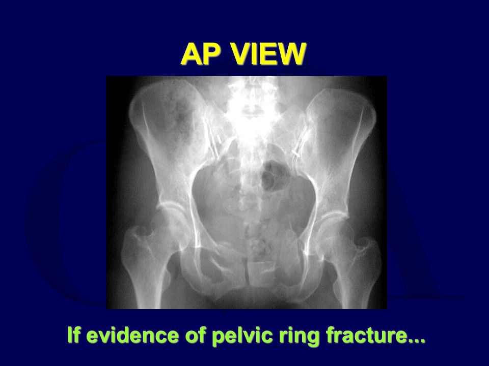 If evidence of pelvic ring fracture...