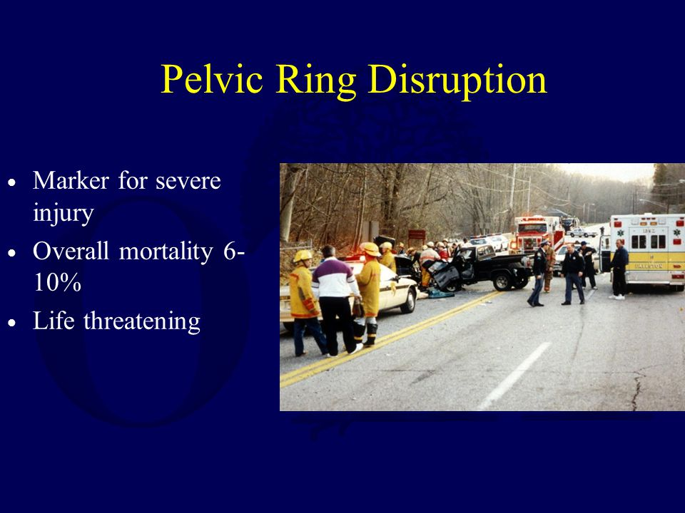 Pelvic Ring Disruption