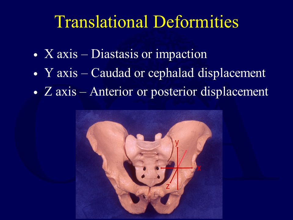 Translational Deformities
