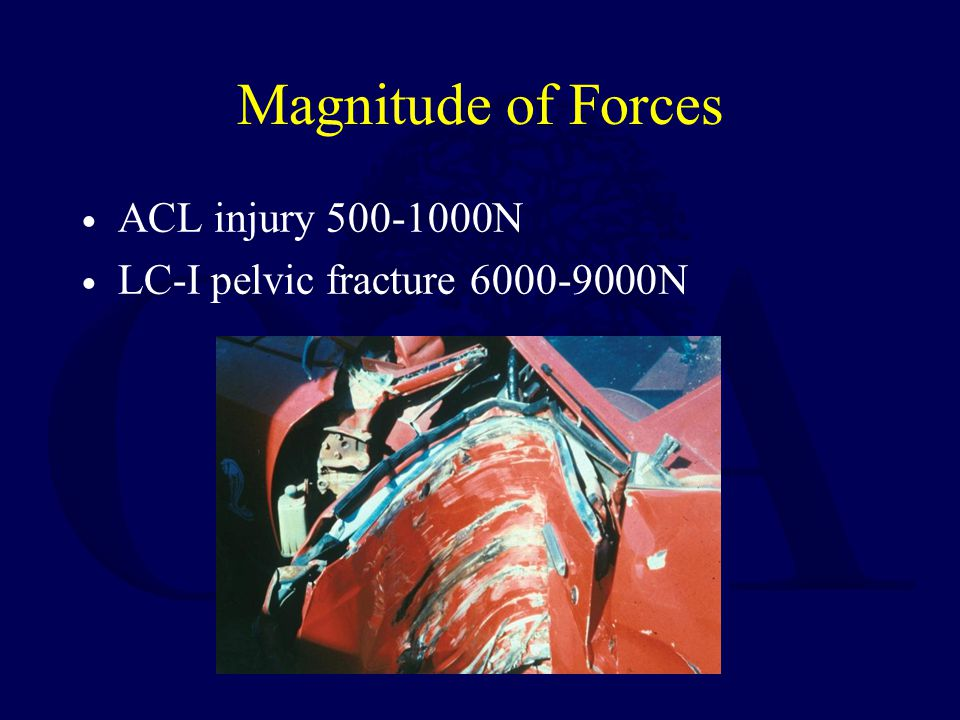 Magnitude of Forces ACL injury 500-1000N