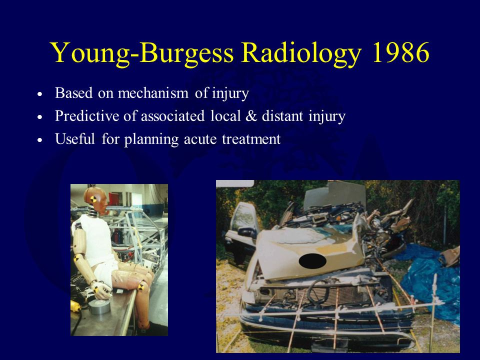 Young-Burgess Radiology 1986