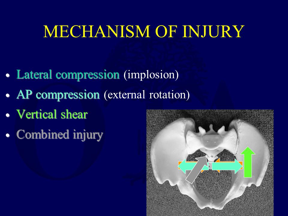 MECHANISM OF INJURY Lateral compression (implosion)