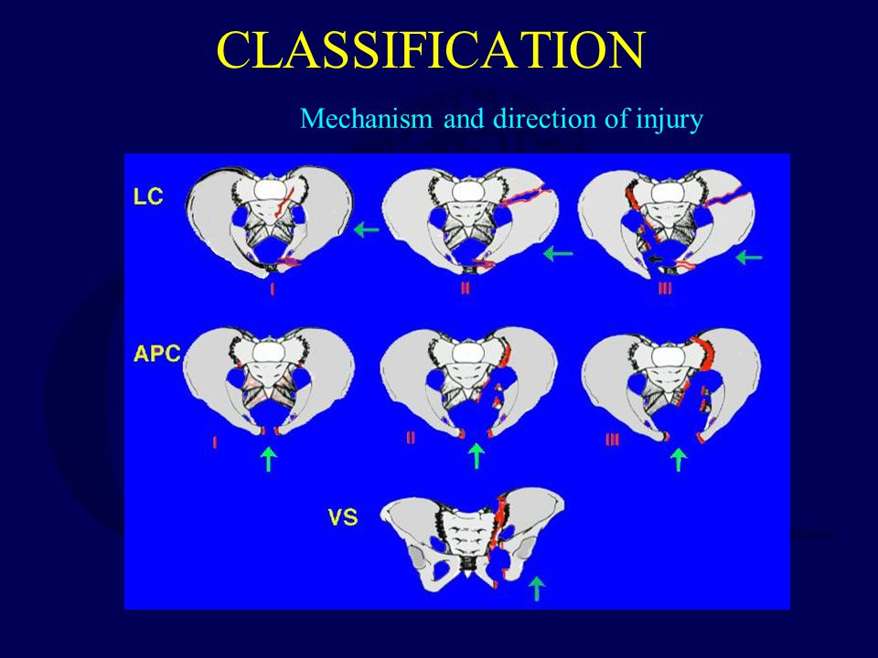 Mechanism and direction of injury