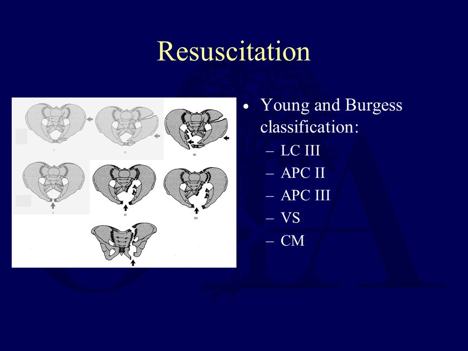 Resuscitation Young and Burgess classification: LC III APC II APC III