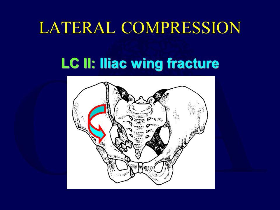 LC II: Iliac wing fracture