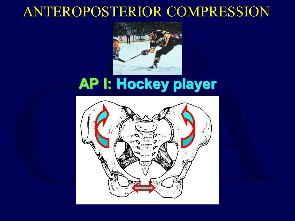ANTEROPOSTERIOR COMPRESSION