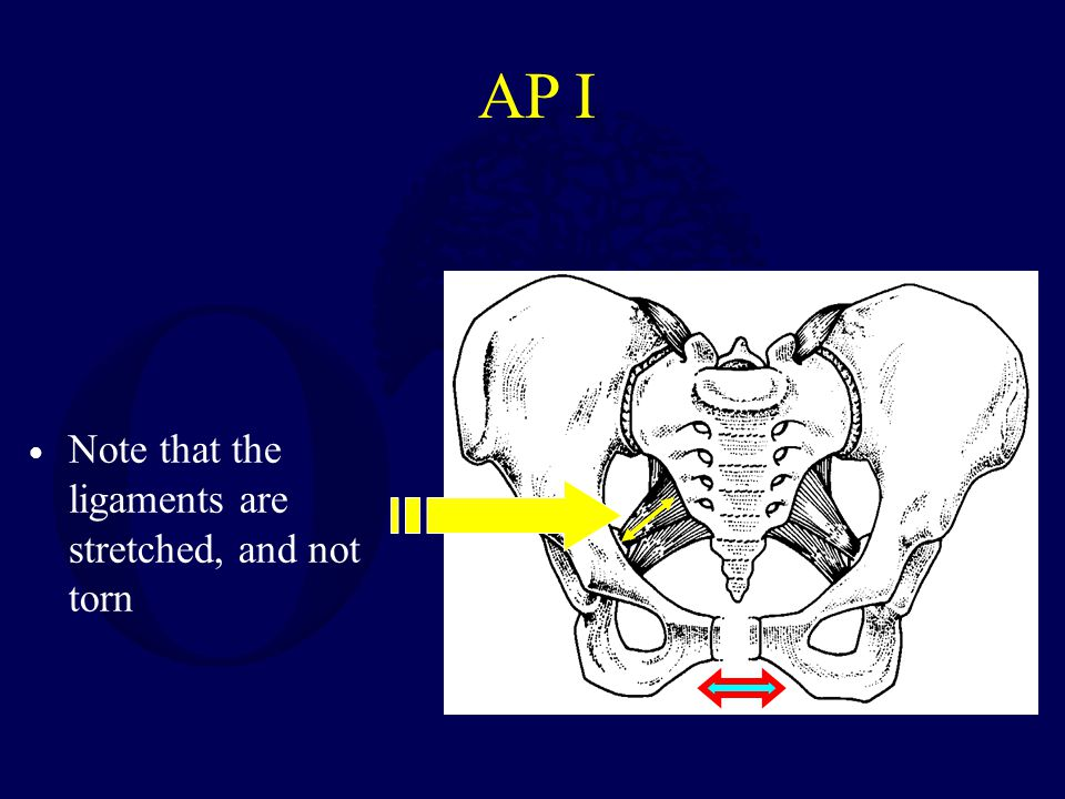 AP I Note that the ligaments are stretched, and not torn