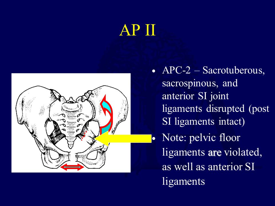 AP II APC-2 – Sacrotuberous, sacrospinous, and anterior SI joint ligaments disrupted (post SI ligaments intact)
