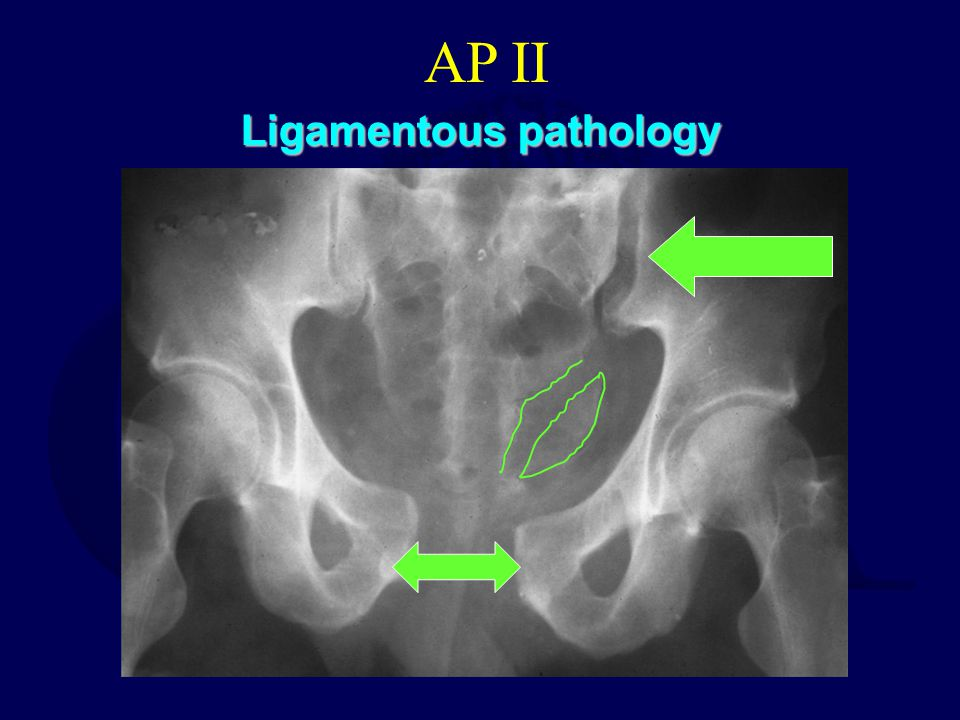 Ligamentous pathology