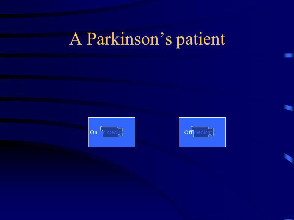 A Parkinson's patient On On medication Off medication
